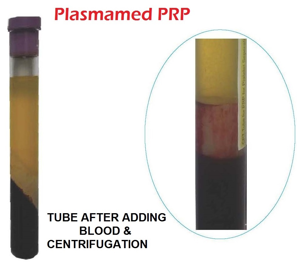 efficacy of growth factors concentration after prp Platelet rich plasma therapy (prp) the efficacy of certain growth factors in healing various injuries and the it is a concentration of one type.